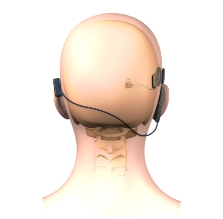 skull-implant-rear-view