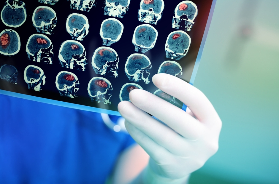 Presurgical imaging may predict whether epilepsy surgery will work