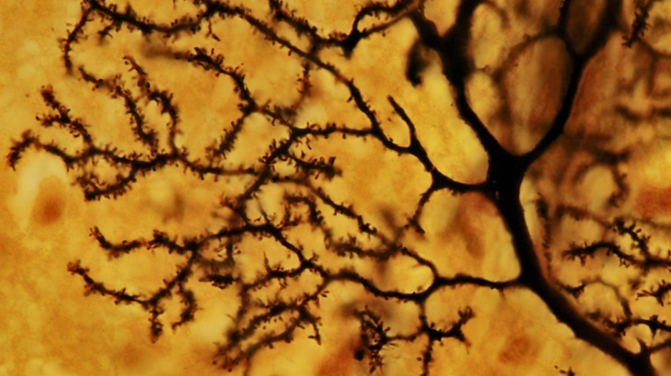 Image of a Purkinje neuron. Researchers show human herpes viruses (HHV-6 ) are capable of infecting neurons, possibly leading to psychiatric disorders like depression and bipolar disorder: Frontiers in Microbiology