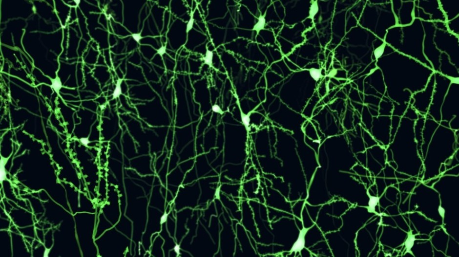 Frontiers in Cellular Neuroscience: The most advanced digital replica of human neurons ever made reveals that human brains are unique -- all the way down to their building blocks.