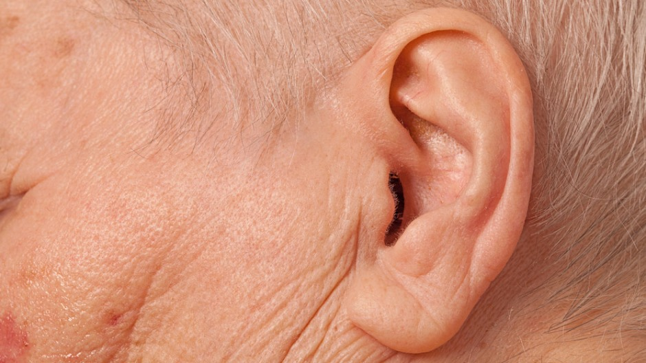 Image of an older person's ear: Cochlear implants do not fully compensate for the cognitive decline that has been associated with the loss of hearing in the elderly: Frontiers in Neuroscience