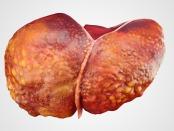 肝硬化的图像。葡萄糖代谢的改变促进了肝硬化向肝癌的发展,在细胞和发育生物学的前沿发现了一项新的研究万博亚洲体育