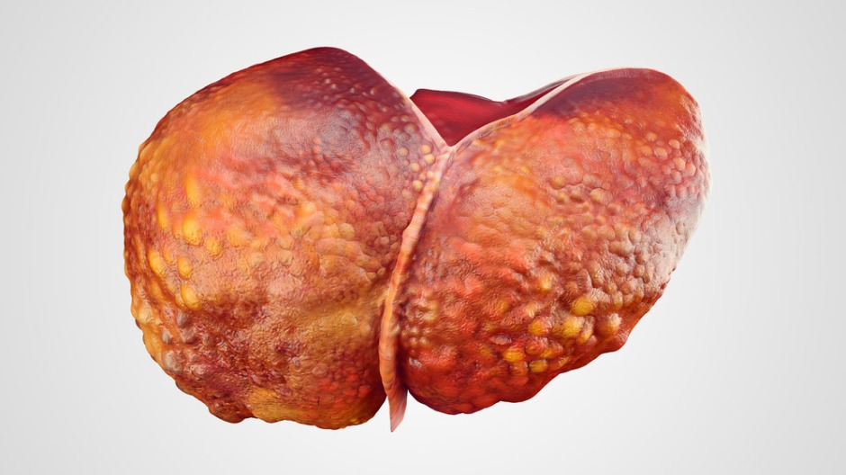 Image of a cirrhotic liver. A shift in glucose metabolism hails progression from liver cirrhosis to liver cancer, finds a new study in Frontiers in Cell and Developmental Biology
