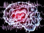 Illustration of a brain with shock waves overlay