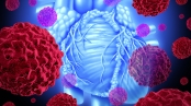 Human heart cancer health care medicine concept with the inner human organ and red cancer cells forming tumors spreading in the body as a malignant disease that needs chemotherapy or heart surgery