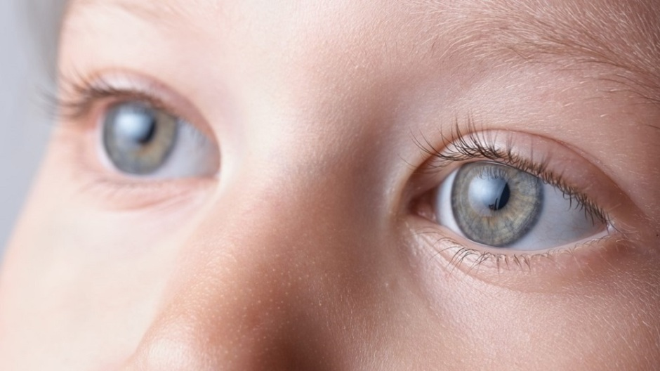 Frontiers in Neurology: Scientists have developed a new AI tool that can screen children for fetal alcohol spectrum disorder quickly and affordably