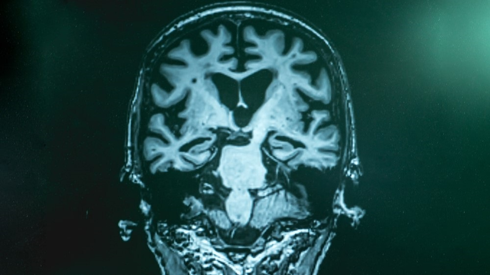 Frontiers in Aging Neuroscience; Brain imaging and spinal fluid analysis could help to guide the use of future preventive treatments for Alzheimer's